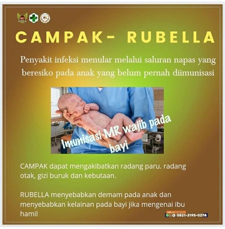 Campak - Rubella